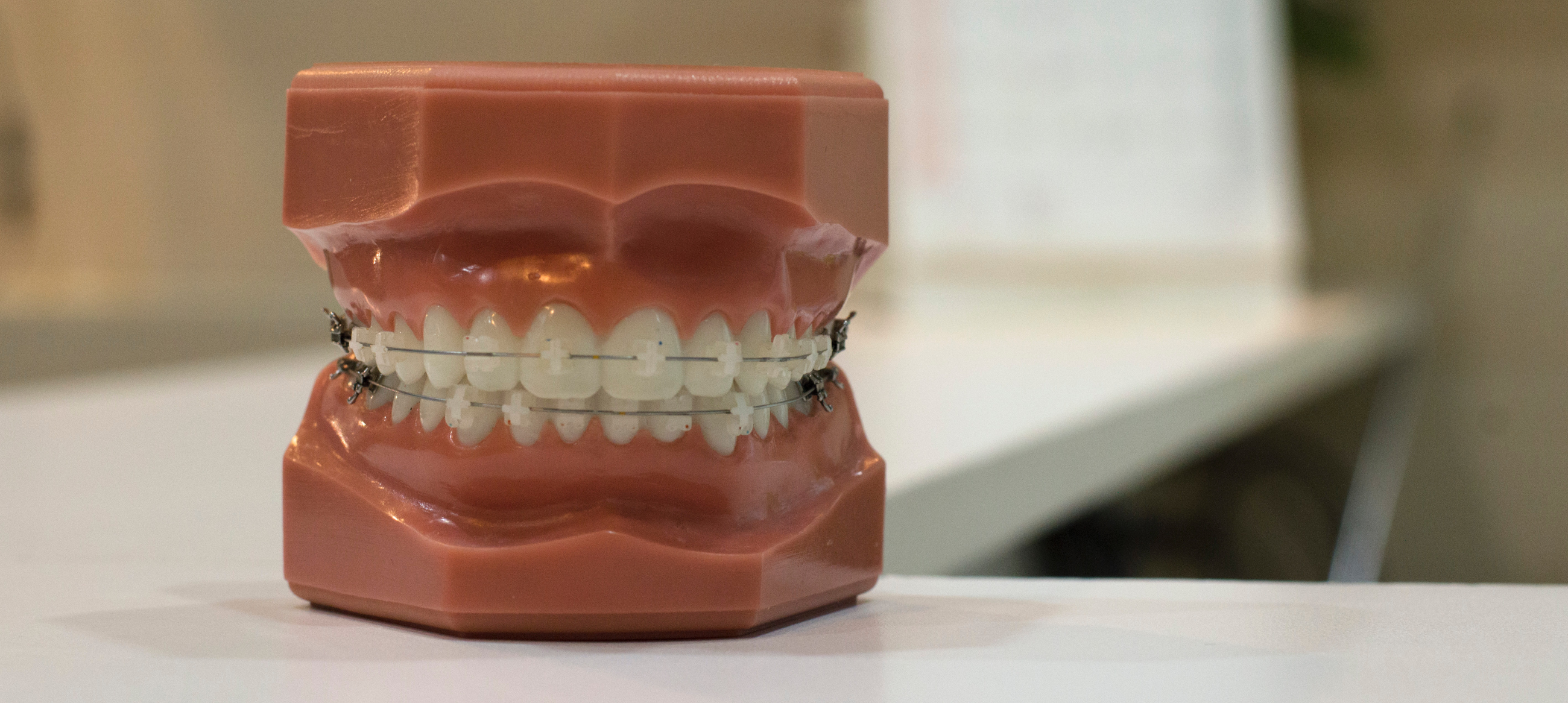 A model of teeth with braces.