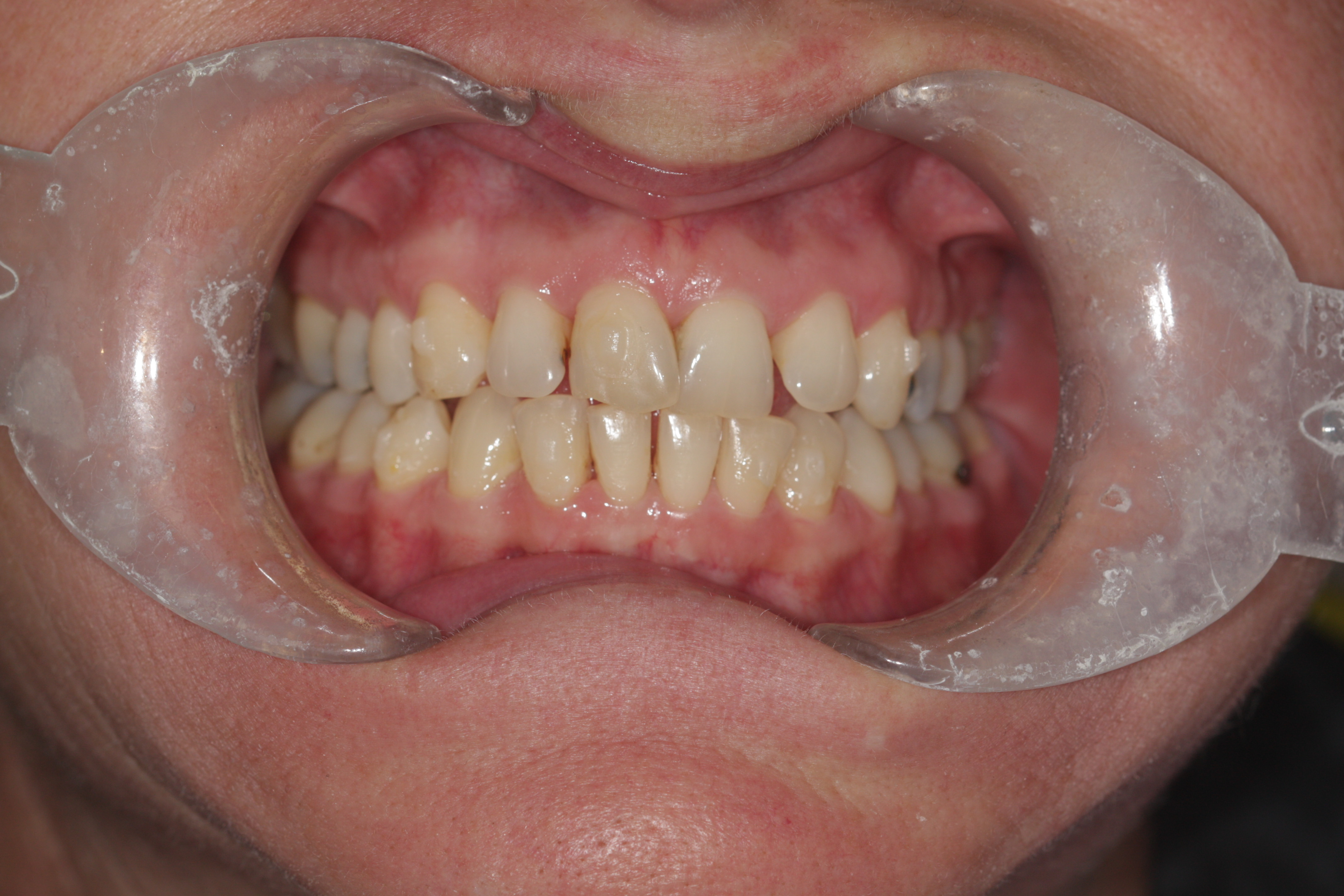 """A """"before"""" photo in a clear aligner before and after comparison."""