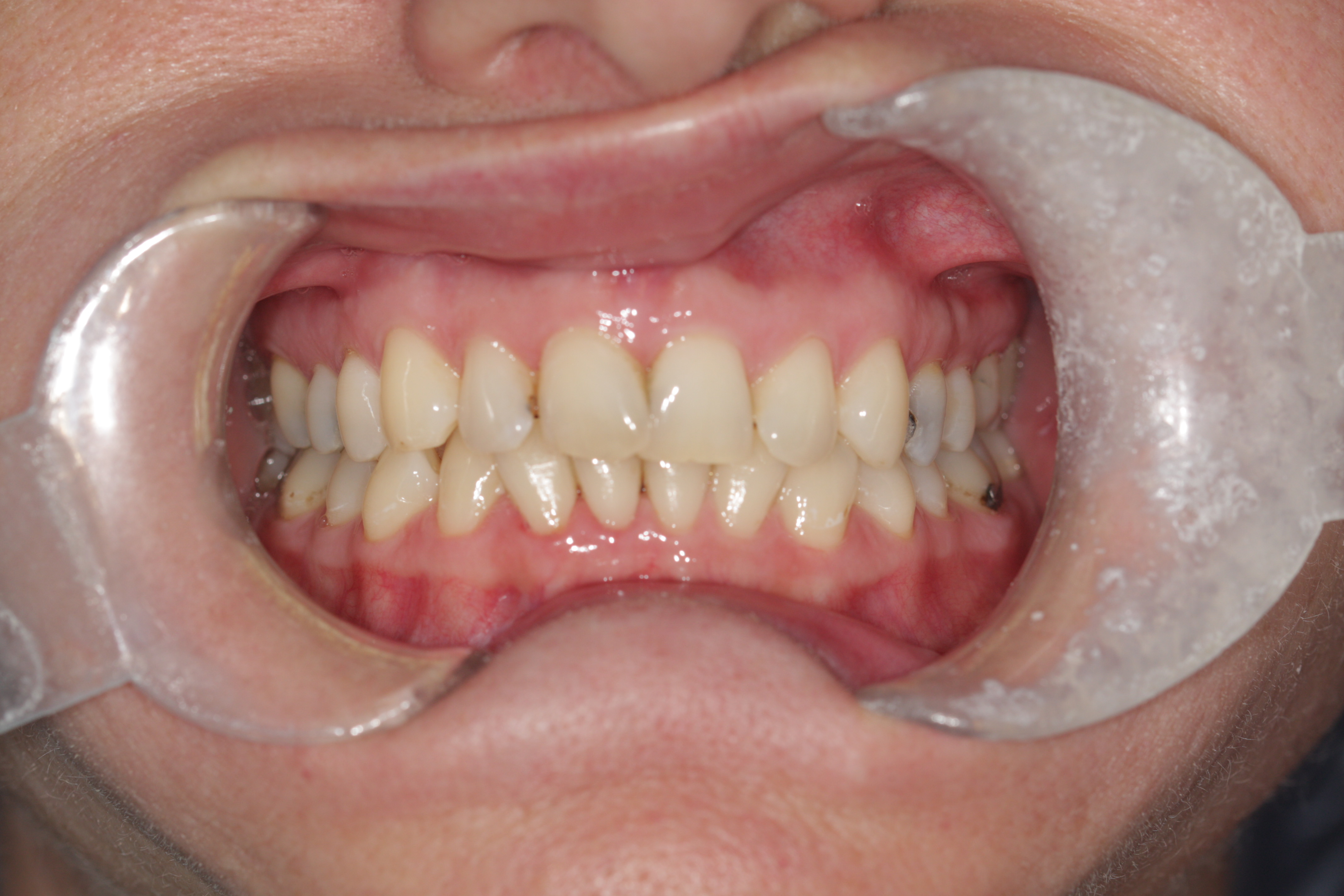 A photo of teeth during an orthodontic treatment.
