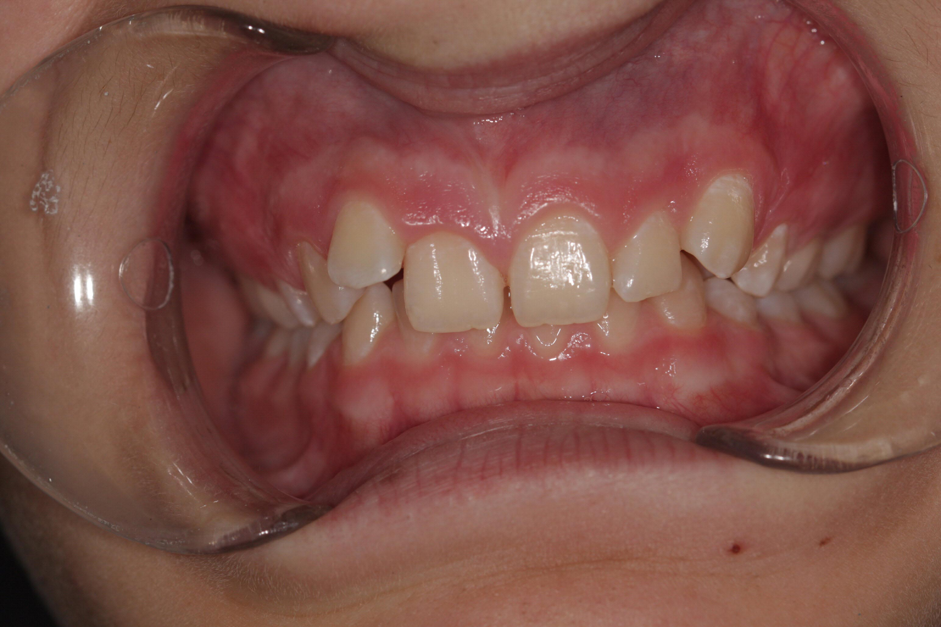 """A """"before"""" photo in a braces before and after comparison."""