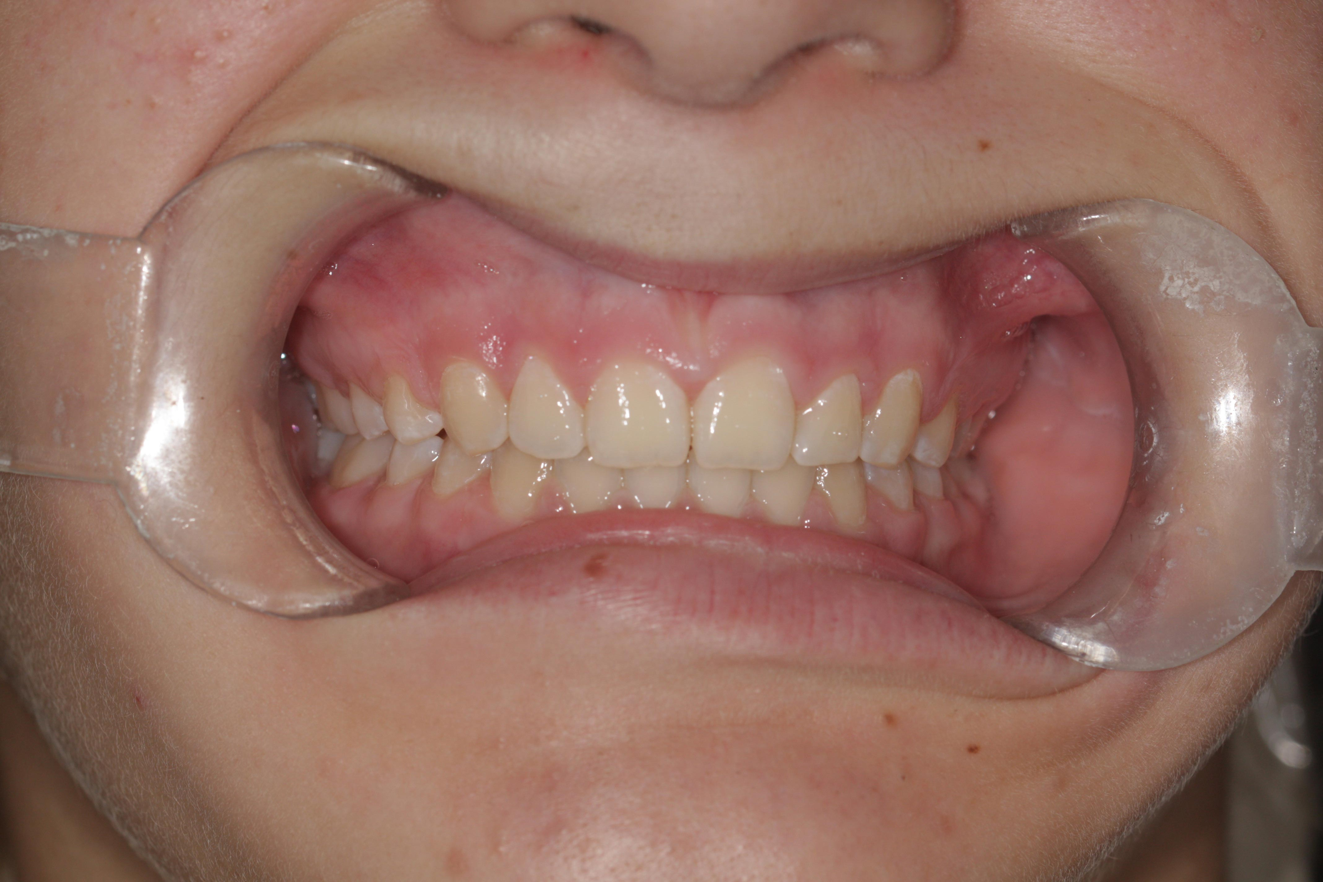 """""""After"""" photo in braces before and after."""